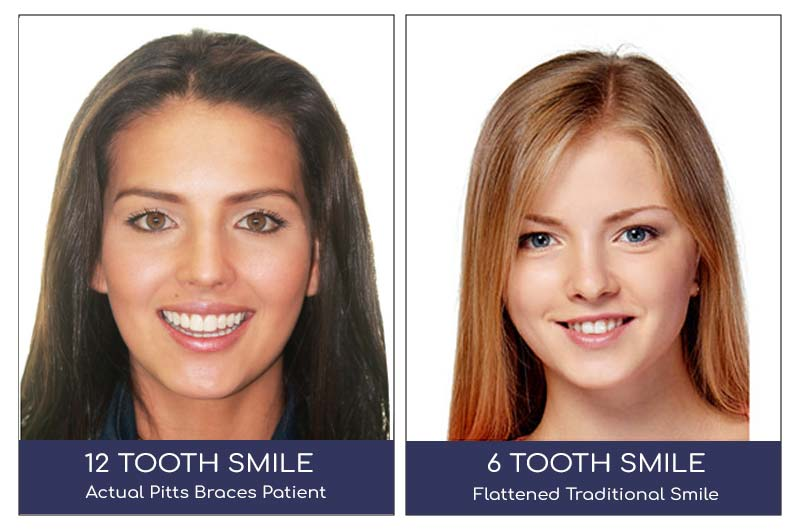 12 tooth smile vs 6 tooth smile from braces