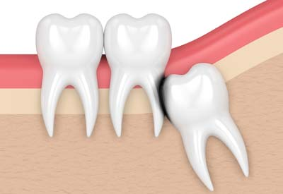 Erosion Cavity from Wisdom Tooth